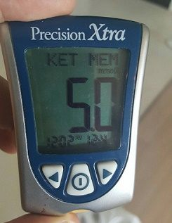 ketone5-0 mmol/L blood count